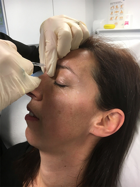 Botox from Aspire Clinic