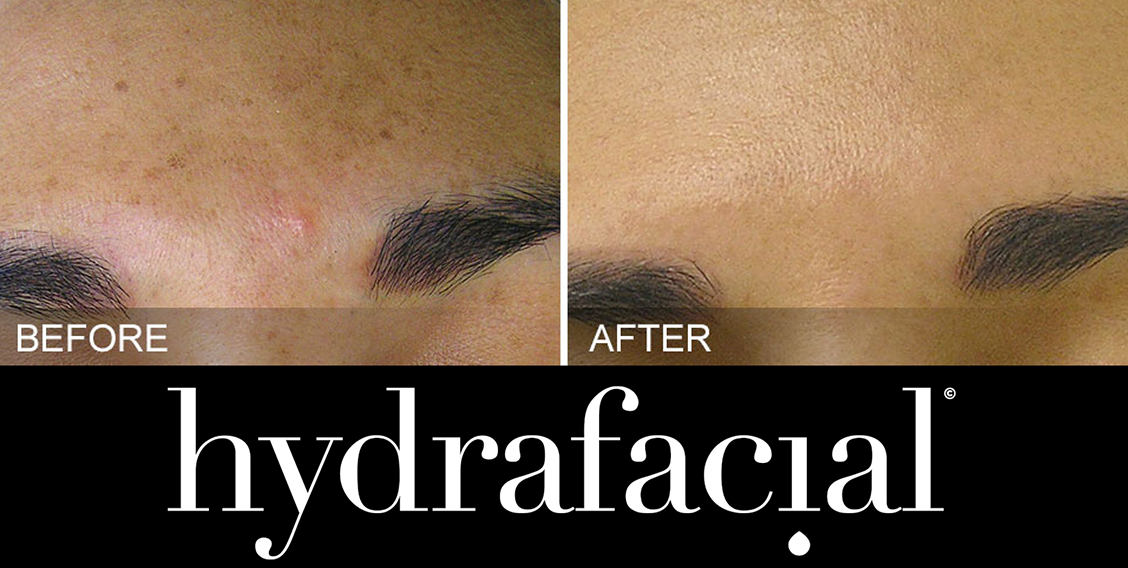 HydraFacial before and after image