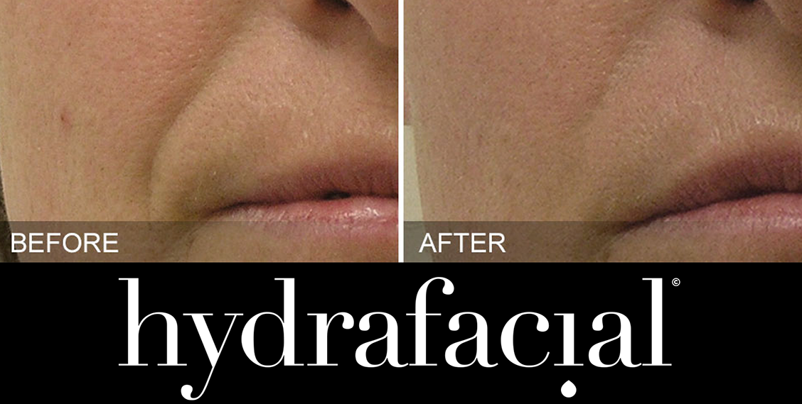 HydraFacialbefore and after