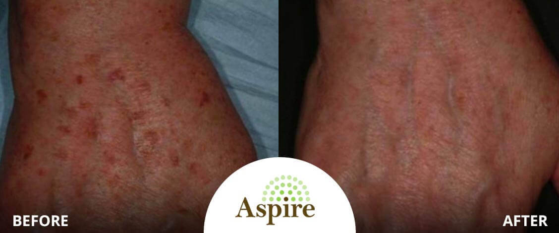 Lumecca for spider veins Before and After
