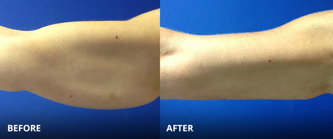 CoolSculpting Petite Before and After