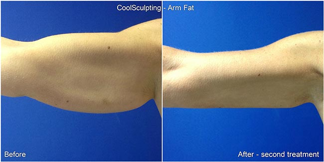 coolsculpting beforeafter 3