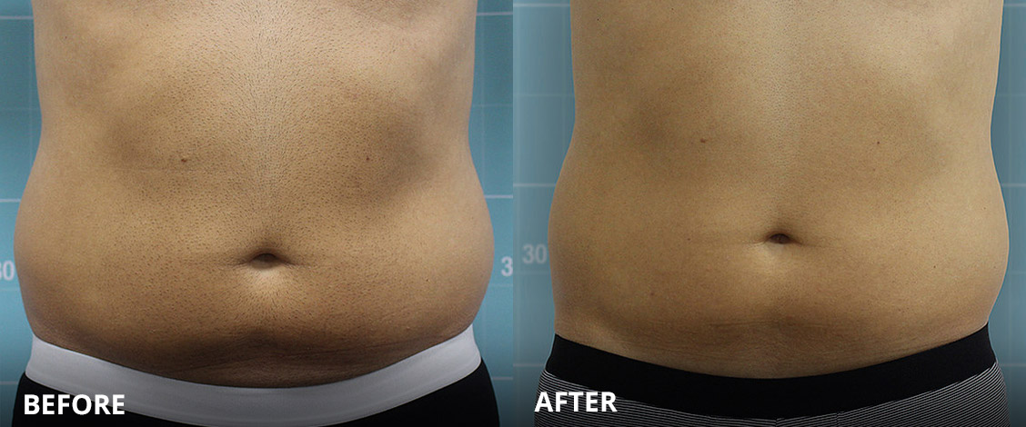 cooltech fat freeze treatment before and after