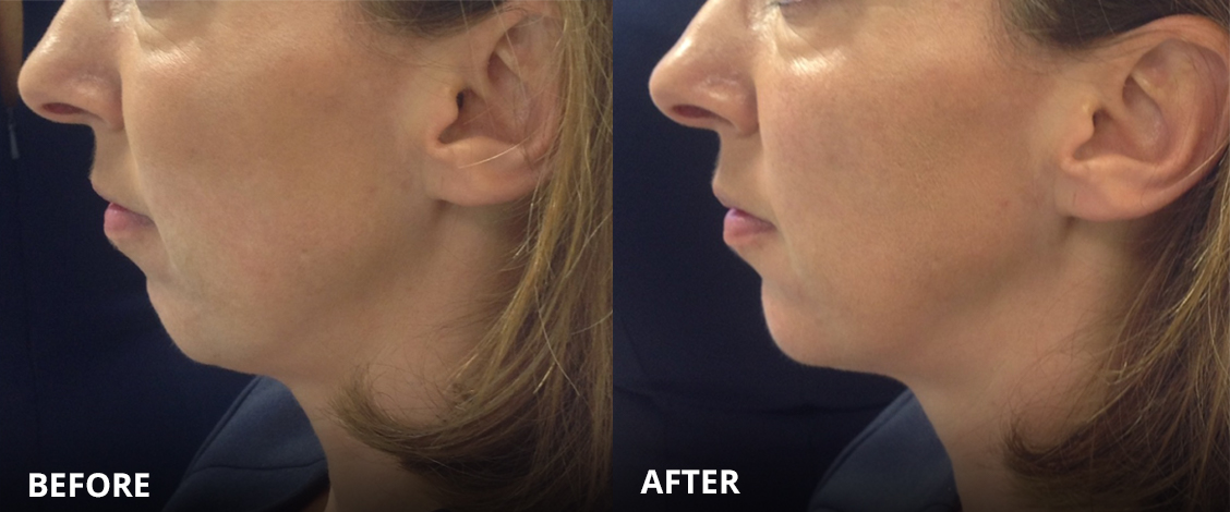 Dermal fillers volux before and after