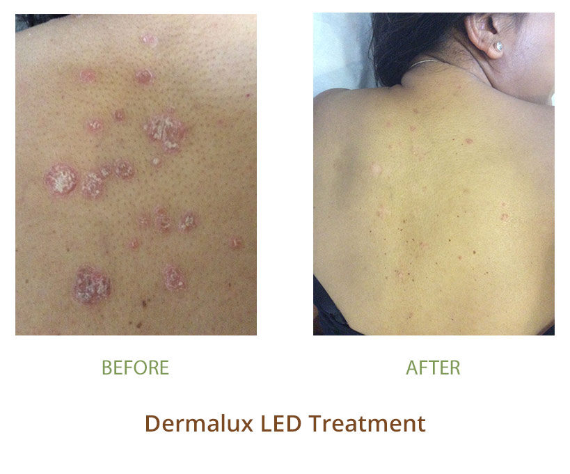 Dermalux Led Phototherapy Treat Acne Eczema Psoriasis