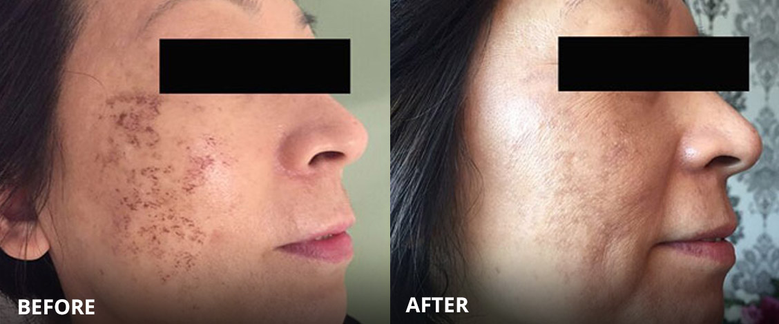 dermalux acne treatment before and after