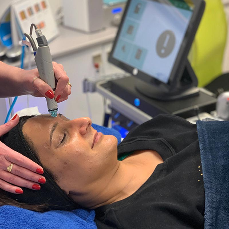 HydraFacial Treatment Image