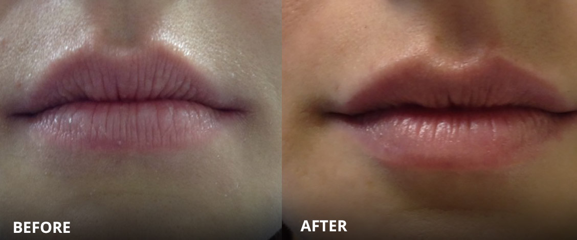 lip fillers lip enhancement before and after