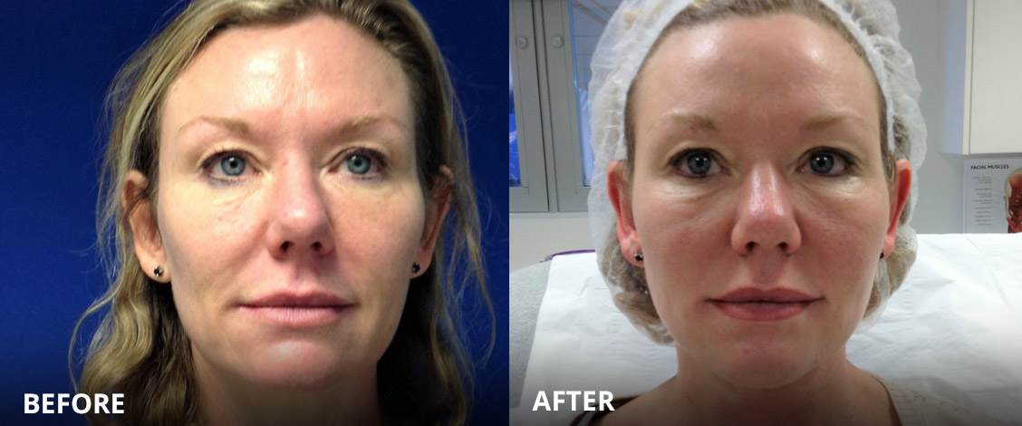 non surgical face lift before and after