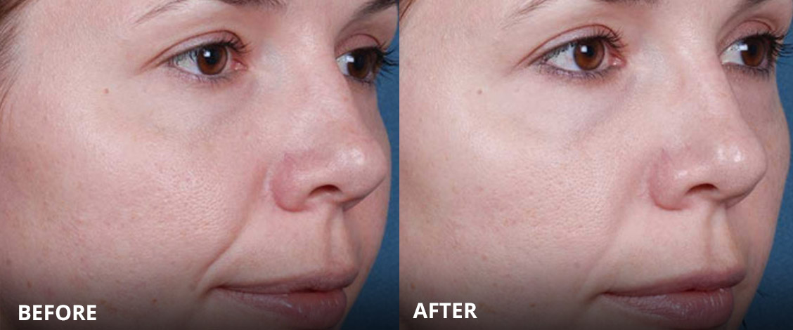 obagi acne treatment before and after