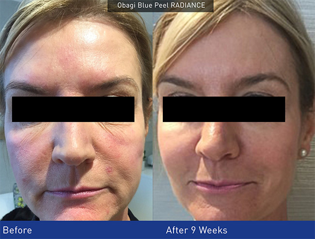 Obagi Skincare Treatment Uk Nu Derm Anti Ageing System
