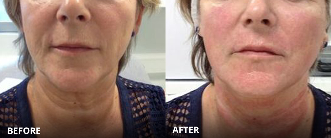 Phoenix Facelift Before and After