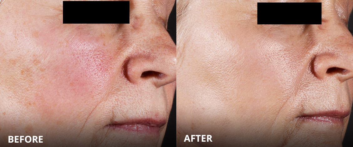 pigmentation removal or reduction before and after