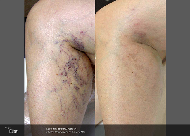 Thread Vein Removal - Before and After