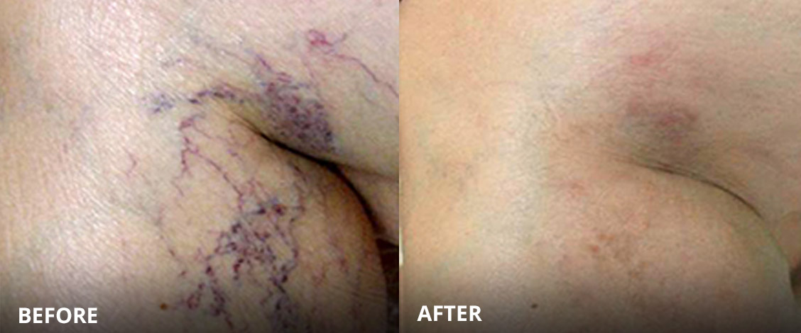 thread vein removal before and after