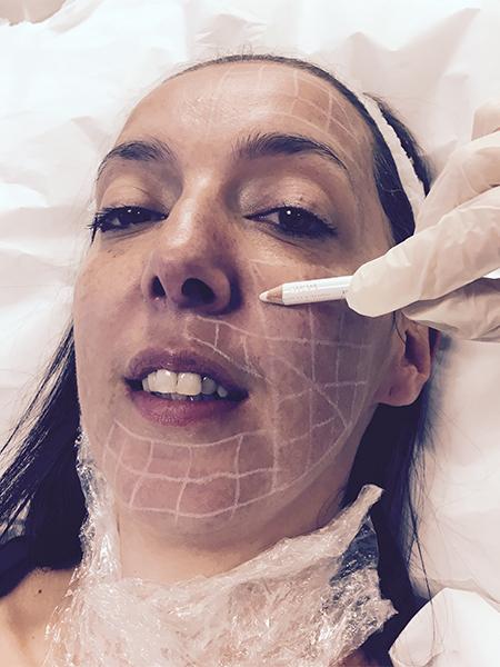 Volite Skin Rejuvenation for Beginners | Aspire Clinic