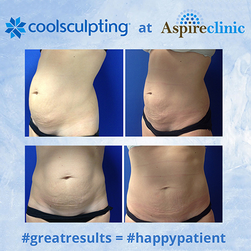 coolsculpting img