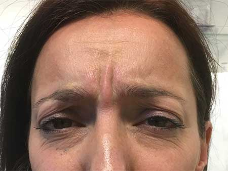 Botox Treatment Results, Aspire Clinic