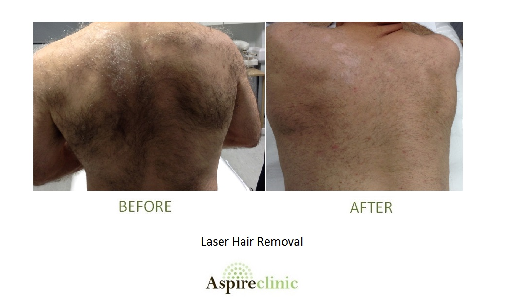 Laser Hair removal BA