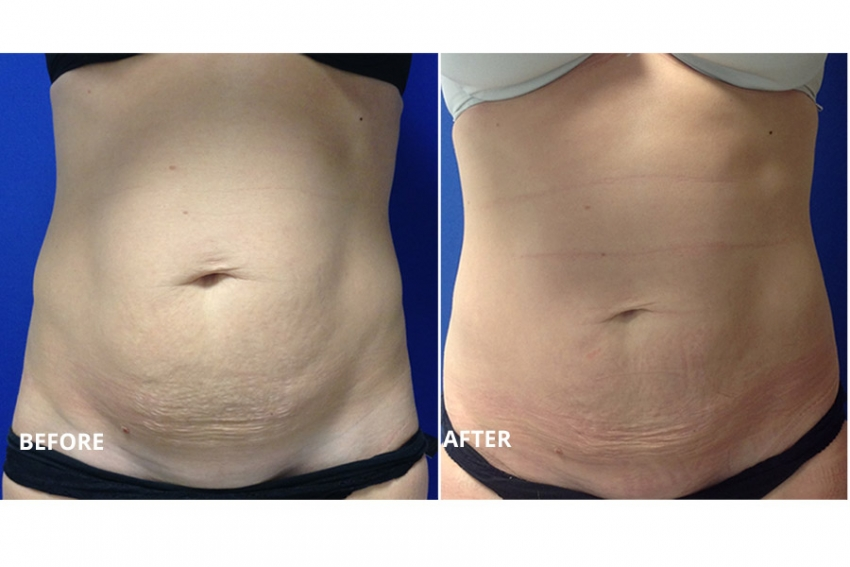 Real Stories, Real Results: Lucy sculpts her runner's body with CoolSculpting